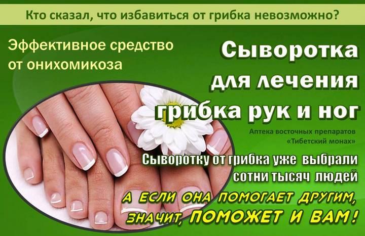 Лечение народное грибка ногтей и ног